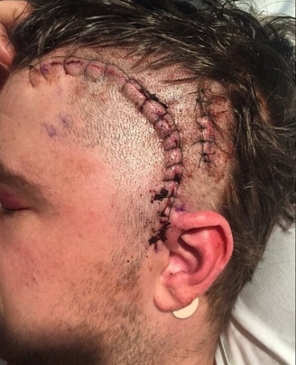 alden-hirschfeld-post-surgery